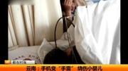 吹风机引发火灾 七个月婴儿重度烧伤