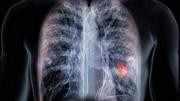 患上巨結腸的癥狀有這些,你身上有這些癥狀嗎?