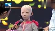 七岁女孩烧伤之后(上)深度观察20140126江西卫视