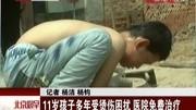 沈阳一岁男孩闯厨房 一锅热汤淋满身被烫伤