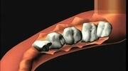 吻合器腸道縫合術 標準化操作 快捷 安全