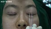 歐式全切雙眼皮原理,日式無痕雙眼皮的價格一般是多少