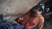 母親疏忽兒童被拐 砍斷手臂沿街乞討