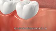 3D演示手術拔智齒,這過程真酸爽