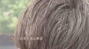 突然长出了白头发怎么办?教你一招不花一分钱,三天还你乌黑头发
