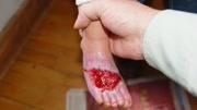 4岁女童误开电动车撞翻油锅,全身重度烧伤,腹部腿部严重烫伤