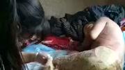 狠心父母把脸部严重烧伤的女婴丢在医院,监控拍到被丢弃全部过程