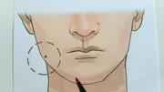 臉部有痣分析大全男人,臉部哪個部位有痣大富大貴